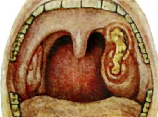Некротическая ангина