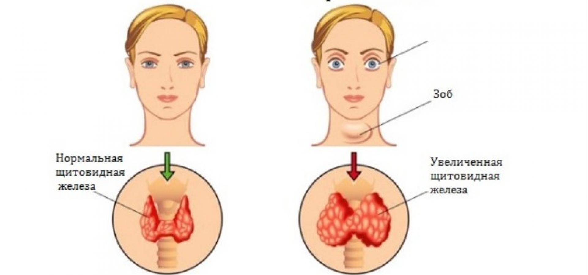 избыток гормона щитовидной железы