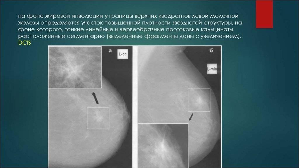 маммография жировая инволюция что это