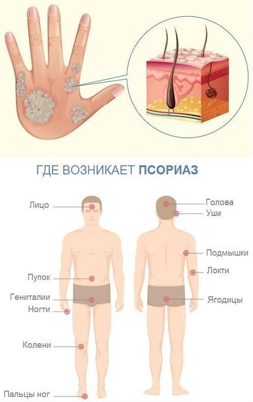 Псориаз: симптомы, диета, лечение народными средствами