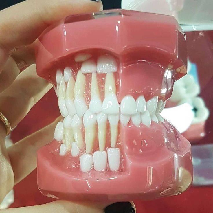 Зубная формула — википедия с видео // wiki 2