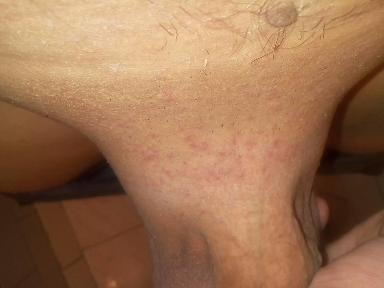 Что такое псориаз на лице, какие стадии заболевания существуют и чем его лечить?