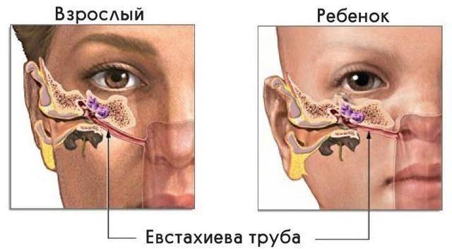 Доктор комаровский о том, что делать, если у ребенка болит ухо. как можно понять, как болит ухо у ребенка: симптомы, лечение болит ухо у ребенка каждый месяц
