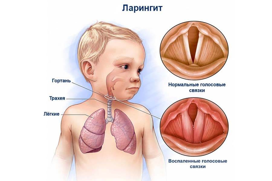Ларингит у детей: как распознать и чем лечить