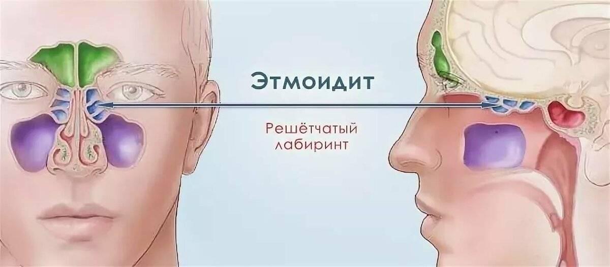 хронический этмоидит симптомы