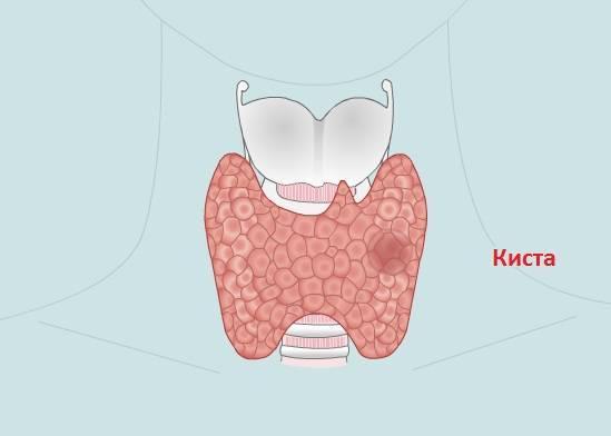Как развивается киста щитовидной железы