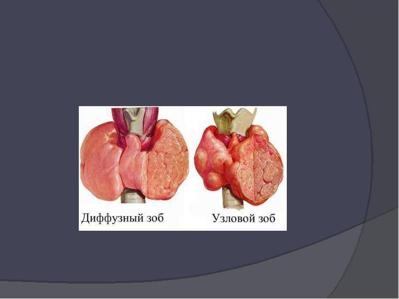 Зоб щитовидной железы – виды, причины и лечение