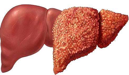 лечение ожирения печени