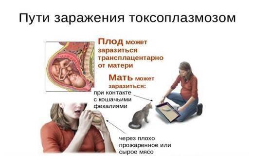 Симптомы токсоплазмоза у беременных, развитие болезни, лечение