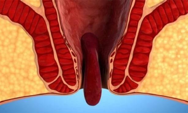 Операция по удалению геморроя, геморроидэктомия: ход, показания