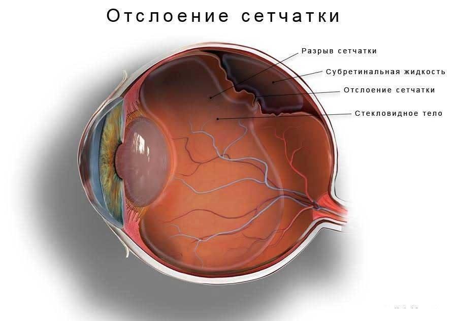 4 способа, как укрепить сетчатку глаза