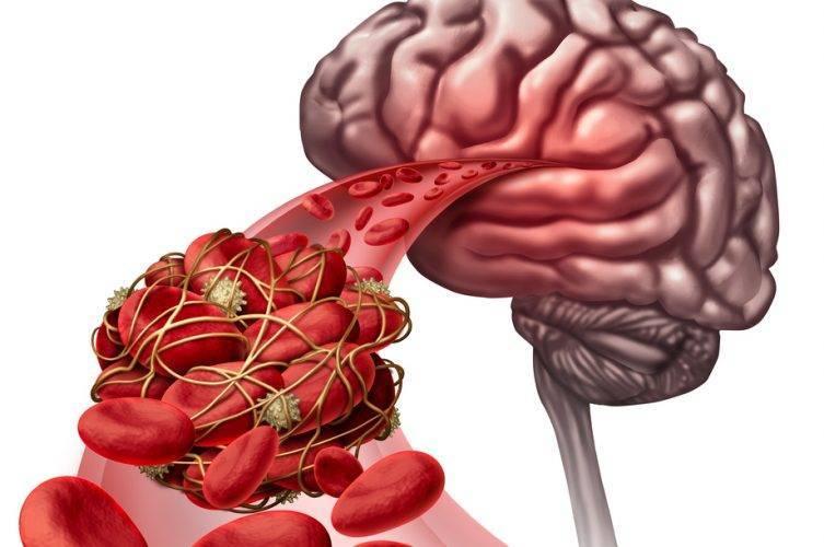 Расскажем, чем лечить атеросклероз сосудов головного мозга: советы специалистов