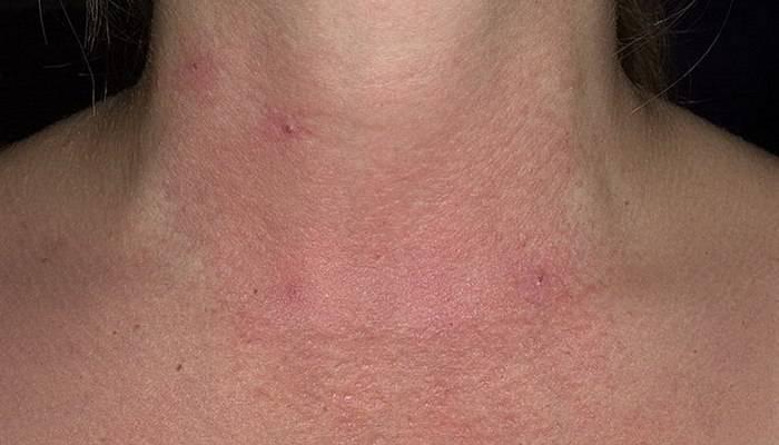 Причины нервного дерматита и его лечение