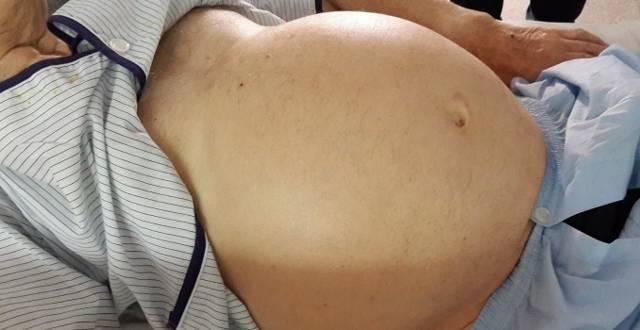 симптомы отказа печени у человека