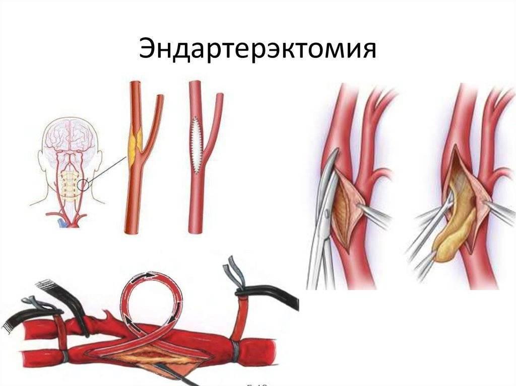 Эндартерэктомия: классическая и эверсионная, показания к операции