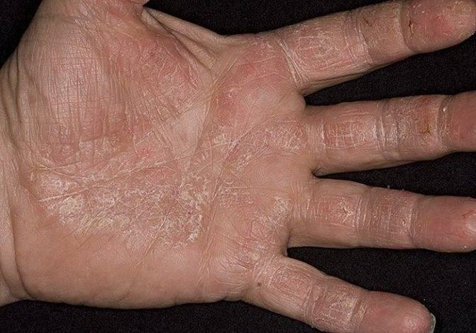 Народное лечение ладонно подошвенный псориаз лечение