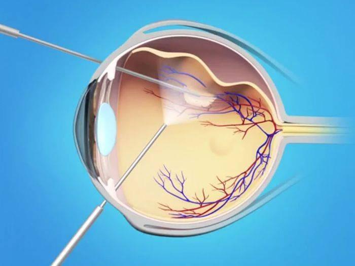 разрыв сетчатки глаза симптомы