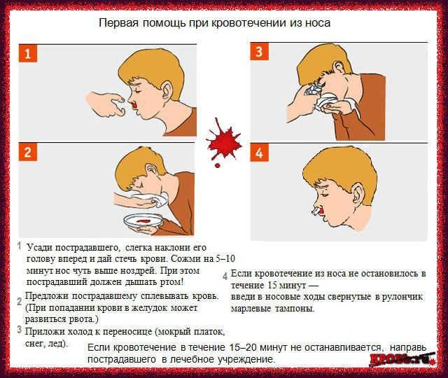 Первая помощь при кровотечении из носа у детей