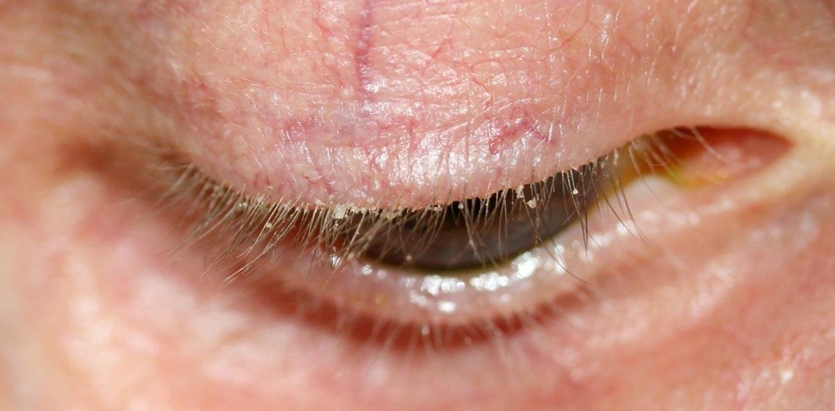 ресничный клещ симптомы