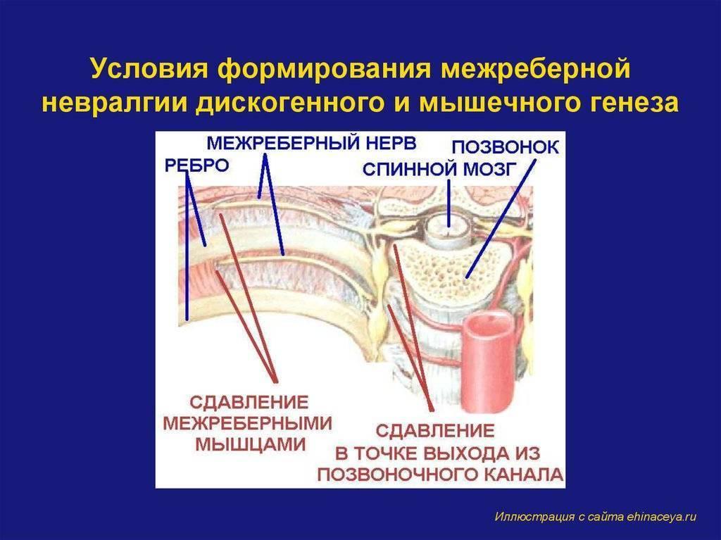 Межреберная невралгия лечение в домашних условиях мазями