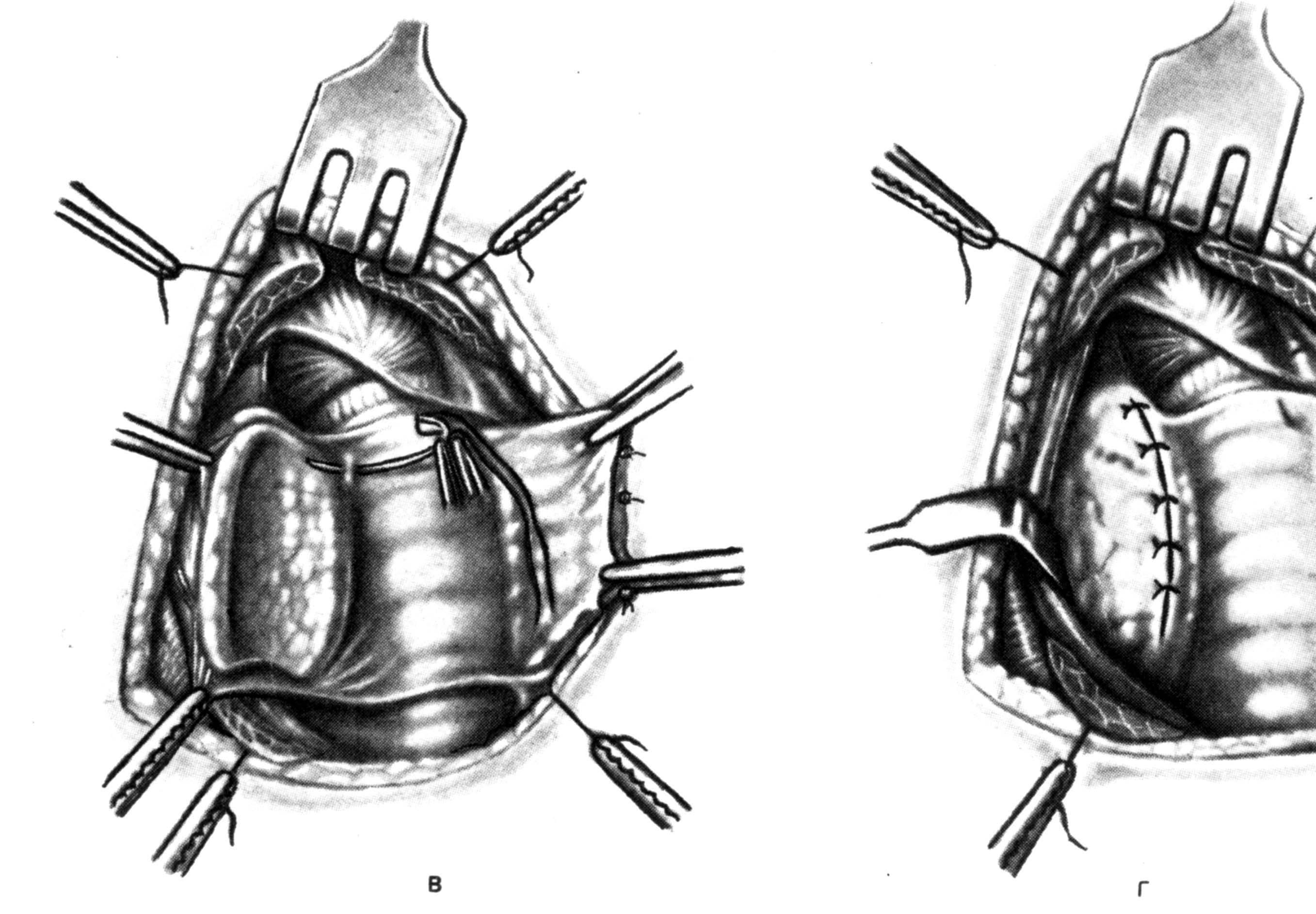 Что нельзя делать после операции на щитовидке | pro shchitovidku
