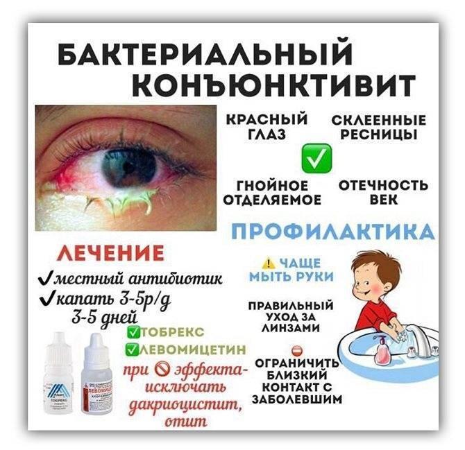 антибиотик при коньюктивите