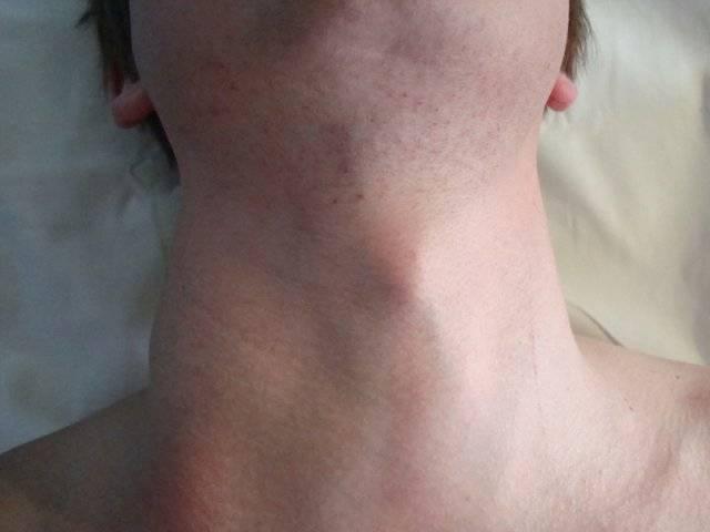 Новообразования щитовидной железы: причины, симптомы, диагностика и лечение