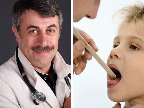 Хронический тонзиллит у ребенка: лечение с помощью лекарств и народных средств, а также операции