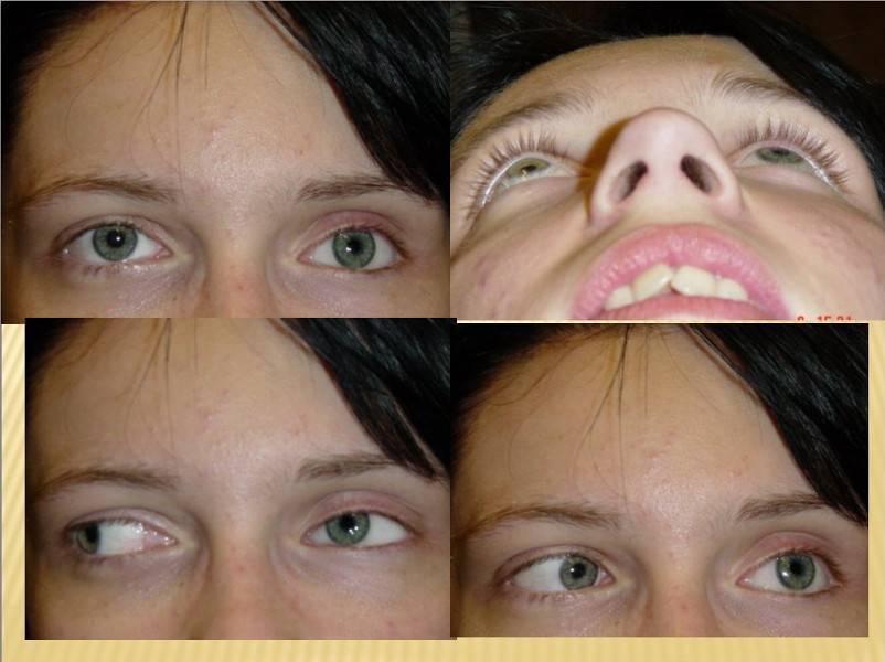 Операция на глаза: обзор основных видов операций и их стоимость