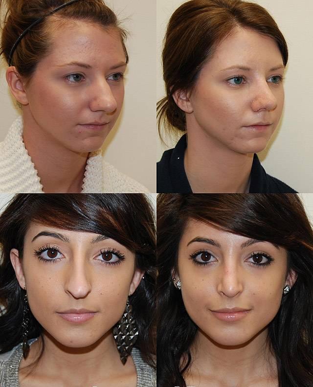 Курсы моделирования: как сделать контуринг носа?