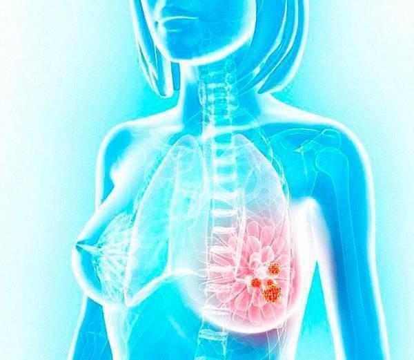 чем занимается маммолог