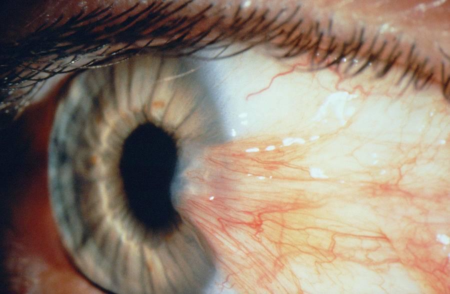 Нарушение с отрицательными последствиями – птеригиум глаза