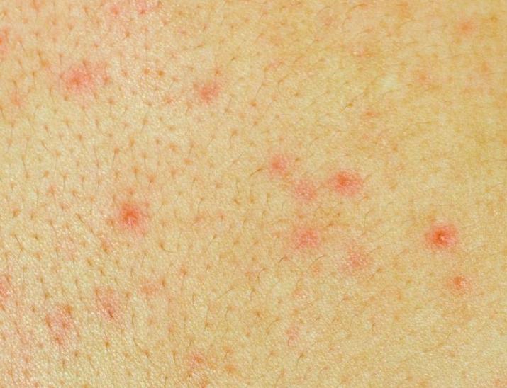 Пятна на коже при заболеваниях печени описание и фото