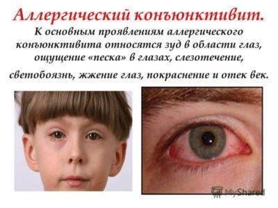 Конъюнктивит при беременности(( - гноится глаз при беременности - запись пользователя анна (anna_ganzha) в сообществе благополучная беременность в категории болезни во время б - babyblog.ru