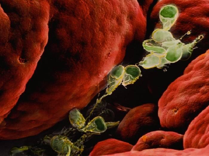 Лямблиоз. причины, симптомы, современная диагностика, эффективное лечение болезни.