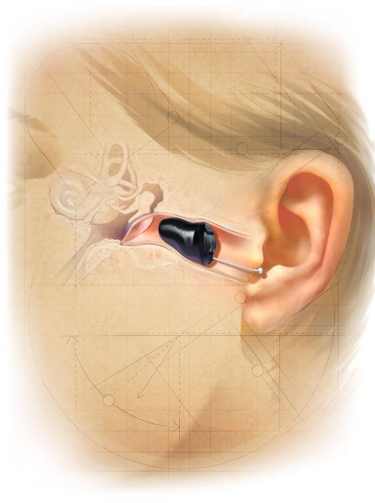 Как выбрать внутриканальный слуховой аппарат