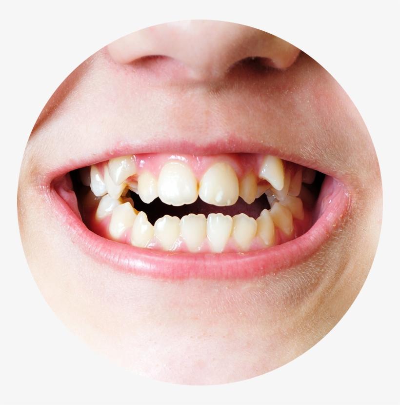 нижние зубы растут криво