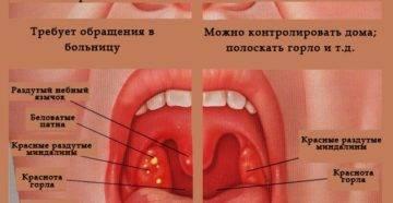 Какие симптомы при воспалении язычной миндалины и методика лечения