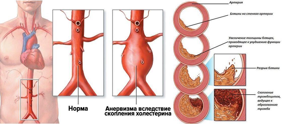 атеросклероз брюшного отдела аорты что это