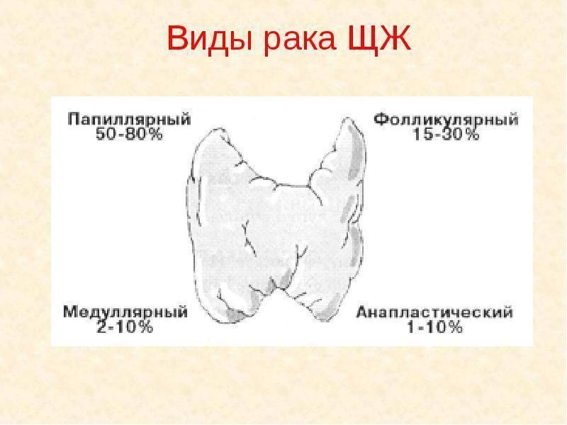 рак щитовидной железы 4 степени прогноз лечение