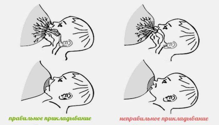 как массировать грудь при лактостазе