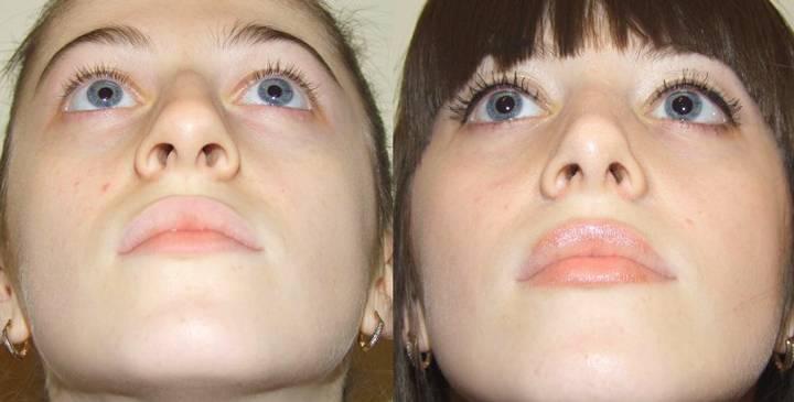 s образное искривление носовой перегородки