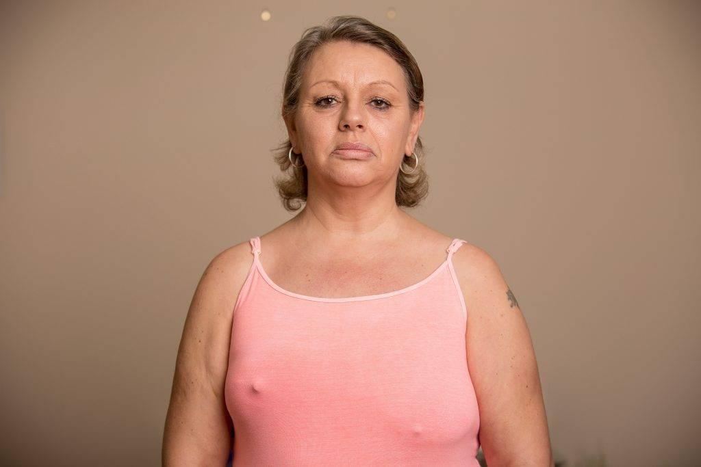 Рожистое воспаление после удаления молочной железы лечение