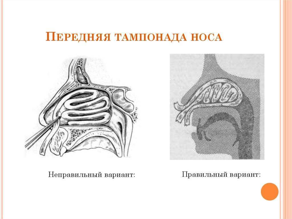 Изготовление и применение турунд в лечении гайморита