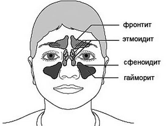 как лечить этмоидит и его симптомы у взрослых
