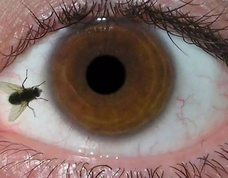 Плавающее пятно в глазу