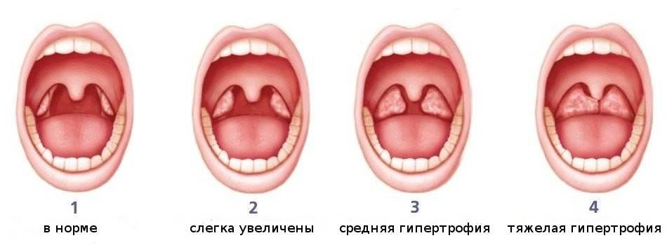 красное горло у ребенка без температуры чем лечить