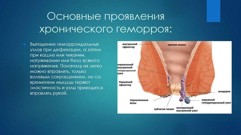 препараты от узлов геморроя