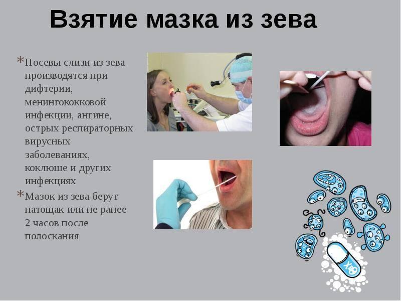 Мазок из зева и носа на стафилококк: норма, расшифровка