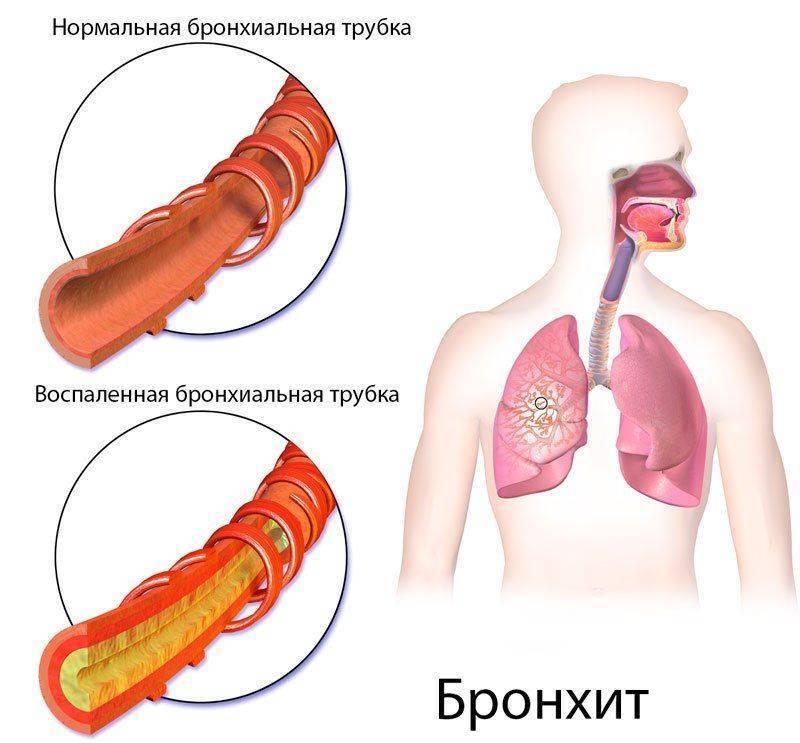 Рациональное лечение кашля при трахеите и бронхите у взрослых и детей